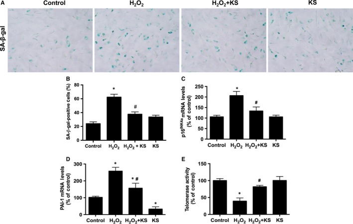 Kallistatin ( KS ) alleviates H 2 O 2 ‐induced endothelial senescence in human endothelial cells. Representative images of SA ‐β‐gal staining (A), and quantitative analysis of positive SA ‐β‐gal staining cells (B). p16 INK 4a and PAI ‐1 mRNA levels analysed by qRT ‐ PCR (C, D). Telomerase activity (E). Values are expressed as mean ± SEM. (n = 3 in each group). * P