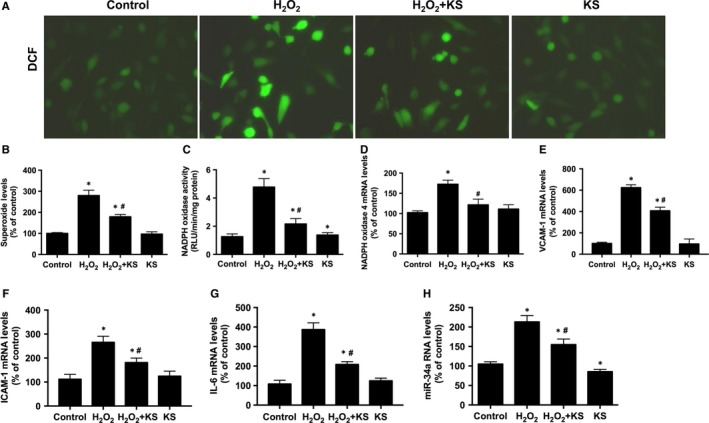 Kallistatin ( KS ) suppresses H 2 O 2 ‐induced oxidative stress and inflammation in human endothelial cells. Representative images of superoxide formation determined by fluorescence dye  DCF  (A), and quantitative analysis of  DCF  fluorescence (B).  NADPH  oxidase activity (C).  mRNA  levels of  NADPH  oxidase 4 (D),  VCAM ‐1 (E),  ICAM ‐1 (F),  IL ‐6 (G) and miR‐34a (H) analysed by  qRT ‐ PCR . Values are expressed as mean ± SEM. (n = 3 in each group). * P