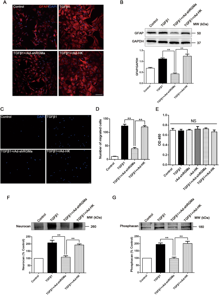 Knockdown of RGMa reduces key steps of TGFβ1-triggered reactive astrogliosis and glial scar formation. a Immunofluorescence of GFAP (red) in culture of primary astrocytes infected with rAd-shRGMa or rAd-HK 3 days before TGFβ1 (10 ng/ml for 24 h) treatment. One representative panel per group out of three independent experiments is shown. b Western blot analysis of GFAP expression in primary astrocytes infected with rAd-shRGMa or rAd-HK, followed by TGFβ1 (10 ng/ml for 3 days) treatment ( n = 3). c , d The migration capability of astrocytes determined by a transwell chamber assay. The astrocytes were cultured in different conditions (Control, TGFβ1, TGFβ1 + rAd-shRGMa, and TGFβ1 + rAd-HK). c Representative fluorescence microscope images of the lower surface of the filter. The cells were stained with DAPI (blue). d Quantification of the cell number of astrocytes that migrated to the lower side of the filter in each group ( n = 3). e The proliferation ability of astrocytes measured by a CCK8 assay ( n = 3). The cultured astrocytes were infected with rAd-shRGMa or rAd-HK before exposure to TGFβ1 (10 ng/ml for 3 days). NS, no significance. f , g Western blot analysis of neurocan f and phosphacan g expression in the supernatant of cultured astrocytes infected with rAd-shRGMa or rAd-HK 3 days before TGFβ1 (10 ng/ml for 3 days) treatment ( n = 3). Scale bar, 100 μm. Data in bar graphs are means ± SEM ( b , d , e , f , g ); one-way ANOVA with Bonferroni post hoc test, ** p