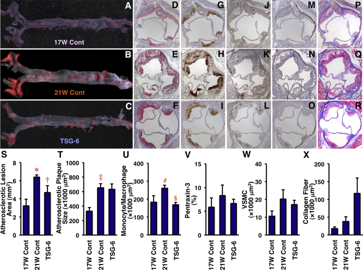 Effects of TSG-6 on Atherosclerotic Lesion Development in ApoE −/− Mice Among 28 ApoE −/− mice at 17 weeks of age, 6 mice were sacrificed before infusion, and 13 and 9 mice were infused with saline (control) or TSG-6 (75 ng/kg/min), respectively, by osmotic minipumps for 4 weeks. The aortic surface was stained by oil red O (A to C) . Cross sections of the aortic sinus were stained with oil red O (D to F) ; antibodies of MOMA-2, a monocyte-macrophage marker (G to I); pentraxin-3, a vascular inflammation marker (J to L) ; α-SMA, a VSMC marker (M to O) ; and Masson's trichrome, a collagen fiber marker (P to R) . Hematoxylin was used for nuclear staining. (S to X) Comparisons of atherosclerotic lesion area, plaque size, intraplaque monocyte/macrophage and VSMC contents, vascular inflammation, and collagen fibers among the 3 groups. *p