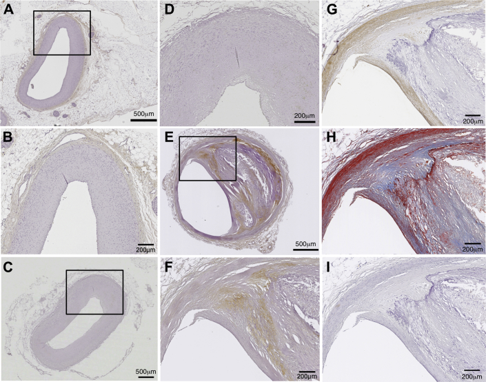 Expression of TSG-6 in Human Coronary Arteries From Patients Without and With CAD Representative normal coronary arteries (A and B) from a patient with dilated cardiomyopathy (male, age 34 years) and nonstenotic coronary arteries (C and D) from a patient with previous myocardial infarction (male, age 78 years), and representative stenotic coronary arteries (E to I) from a patient with previous myocardial infarction (male, age 62 years) were stained with anti–TSG-6 antibody (A to F) ; anti-α-SMA antibody, a VSMC marker (G) ; Masson's Trichrome, a collagen fiber marker (H) ; and anti-CD68 antibody, a macrophage marker (I) . These patients died of heart failure or stroke. All coronary arteries were not the culprit artery of acute coronary events. CAD = coronary artery disease; other abbreviations as in Figure 5 .