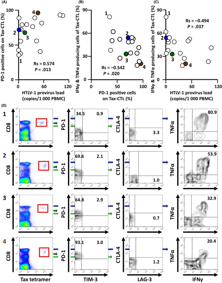 Relationships between programmed cell death protein 1 ( PD ‐1) positivity of Human T‐cell lymphotropic/leukemia virus type 1 ( HTLV ‐1) Tax‐specific cytotoxic T cells (Tax‐ CTL ) and the production of interferon ( IFN )‐γ and tumor necrosis factor ( TNF )‐α ex vivo in response to cognate peptide in HTLV ‐1 asymptomatic carriers ( AC ). A, Correlation between HTLV ‐1 provirus load in PBMC and the percentage of PD ‐1‐positive Tax‐ CTL in HTLV ‐1 AC . There was a significant positive correlation between these two factors ( R s = 0.574, P = .013). B, Correlation between the percentage of PD ‐1‐positive Tax‐ CTL and the percentage of both IFN ‐γ‐ and TNF ‐α‐producing Tax‐ CTL ex vivo in response to cognate peptide. There was a significant inverse correlation between these 2 factors ( R s = −0.542, P = .020). C, Correlation between the HTLV ‐1 provirus load in PBMC and the percentage of both IFN ‐γ‐ and TNF ‐α‐producing Tax‐ CTL ex vivo in response to cognate peptide. There was a significant inverse correlation between these 2 factors ( R s = −0.494, P = .037). D, Lymphocyte populations from HTLV ‐1 AC donors 1, 2, 3, and 4 showing CD 8 and HTLV ‐1 Tax tetramer positivity. CD 8 and HTLV ‐1 Tax tetramer‐positive cells are gated as shown by the red squares (left panels), and plotted to show T‐cell immunoglobulin and mucin domain‐containing protein‐3 ( TIM ‐3) and PD ‐1 positivity. Percentages of PD ‐1‐positive but TIM ‐3‐negative, and of PD ‐1‐ and TIM ‐3‐double‐positive cells are indicated in each panel (second left). CD 8 and HTLV ‐1 Tax tetramer‐positive cells are plotted to show lymphocyte‐activation gene 3 ( LAG ‐3) and cytotoxic T‐lymphocyte‐associated antigen 4 ( CTLA ‐4) positivity. Percentage of LAG ‐3‐positive but CTLA ‐4‐negative cells is indicated (second right). PBMC obtained from HTLV ‐1 AC 1, 2, 3, and 4 were cocultured with or without cognate peptide (final concentration 100 nmol/L) at 37°C in 5% CO 2 for 3 h, after which brefeldin A was added. The cells were then incubated for an additional 2 h. Subsequently, IFN ‐γ and TNF ‐α production from Tax‐ CTL was evaluated. Percentage of Tax‐ CTL producing both IFN ‐γ and TNF ‐α in response to cognate peptide is indicated in each panel (right‐hand side). Plots labeled 1, 2, 3, and 4 in (A,B,C), correspond to 1, 2, 3, and 4, in (D), respectively. Plots labeled 2, 3, and 4 in (A,B,C) are colored blue, green, and brown, respectively