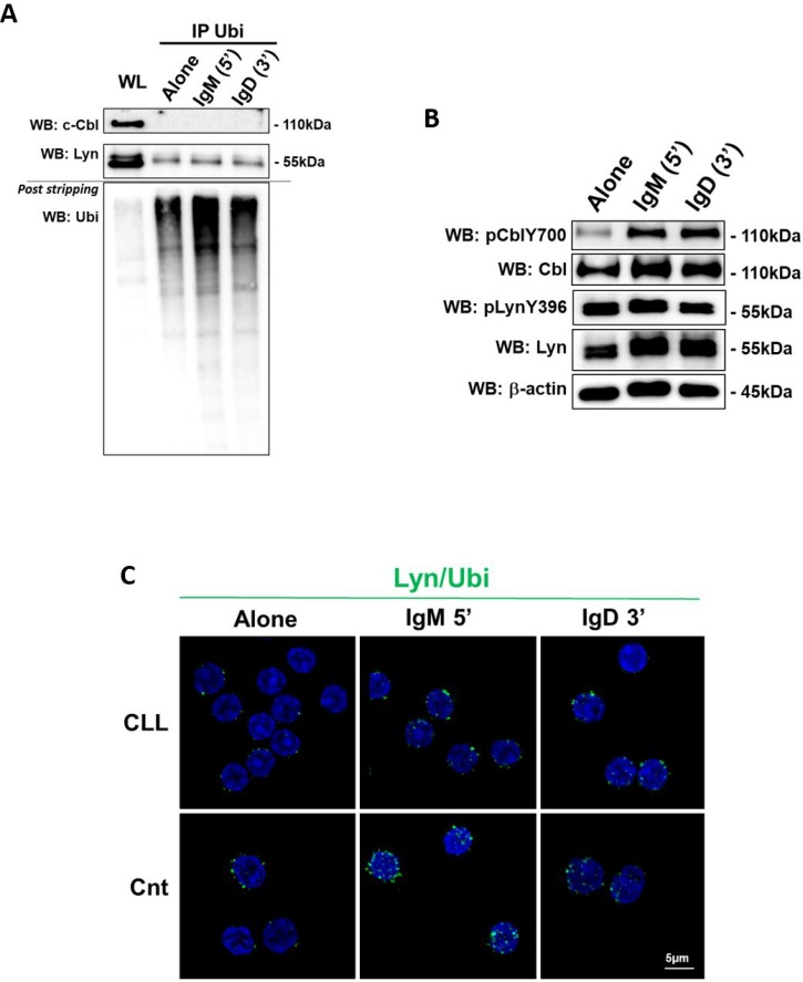 Lyn and c-Cbl ubiquitination ( A ) The lysates obtained from leukemic B cells of CLL patients ( n = 10), before and after 5 minutes of IgM and 3 minutes of IgD stimuli (10ng/mL), were immunoprecipitated with anti-Ubiquitin antibody (IP Ubi). Immunocomplexes (IP) and whole lysate (WL) were loaded in SDS-PAGE (10% Acrylamide/Bis-acrylamide) and then probed with anti-c-Cbl, anti–Lyn and, after stripping the membrane, with anti-ubiquitin-HRP supplied in ubiquitin-immunoprecipitation kit. ( B ) Western blotting (10% Acrylamide/Bis-acrylamide) of CLL B lymphocytes is representative of all 10 samples analysed. The lysates obtained from leukemic B cells, before and after IgM and IgD stimuli, were analyzed by immunostaining with antibody against pCblY700, c-Cbl, pLynY396, Lyn and β-actin. ( C ) Proximity ligation assay (PLA) was performed on CLL and normal B cells (Cnt). Rabbit polyclonal anti-Lyn and mouse monoclonal anti-ubiquitin were used as primary Abs. Positive PLA signals are visualized as green fluorescent spots, nuclei are in blue (DAPI). Images are representative of three independent experiments, and were acquired with zoom 3 using 60X/1.35NA oil immersion objective. Z-projections of 15 slices are shown. Scale bar: 5 µm.