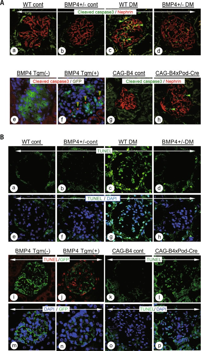 Diabetic mice and BMP4 induced mice exhibited apoptotic damage in glomeruli. (A) Images of immunohistochemistry for cleaved caspase-3 in the DM model, Bmp4 tgm and CAG-B4xPod-Cre mice. The WT DM mice (c) exhibited an increase in the positively stained area compared with the WT control mice (a). Yellow represents the area in which cleaved caspase-3 and nephrin expression overlap (c, arrowhead). Bmp4 +/− DM mice (d) exhibited a reduced positively stained area compared with WT DM mice. Bmp4 tgm (+) (f) and CAG-B4xPod-Cre (h) mice displayed increased positively stained areas after Cre-mediated recombination. Cleaved caspase-3-stained areas are shown in red in Bmp4 tgm (+) (f, arrowhead) and green in CAG-B4xPod-Cre mice (h, arrowhead). (B) Percentage of apoptotic cells in the glomeruli, as determined by a TUNEL assay. Apoptosis was frequently observed in the glomeruli of WT DM (c), Bmp4 tgm (+) (j, red color) and CAG-B4xPod-Cre mice (l). Bmp4 +/− DM mice (d) exhibited reduced apoptosis. TUNEL staining is shown in green and red; blue represents the counterstain.