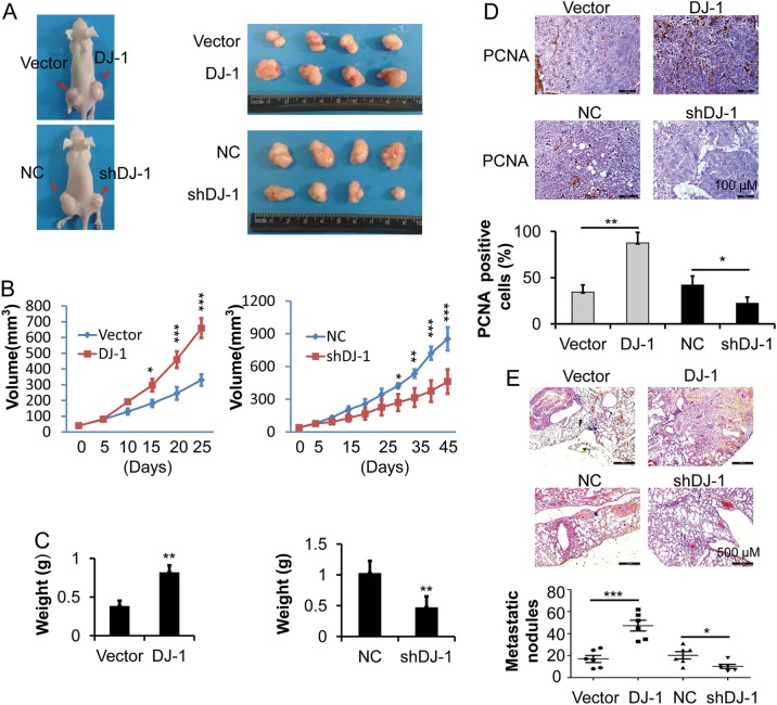 DJ-1 enhances CRC tumor growth and metastasis in vivo. HCT116 cells were stably transfected with DJ-1 shRNA or negative control vector (NC), or stably transfected with DJ-1 cDNA or vector. a – c Transfected HCT116 cells were subcutaneously injected into nude mice and xenograft tumor growth was determined for 25 days or 45 days. Tumor mass images ( a ). Growth curves of tumor volumes ( b ). Tumor weight ( c ). n = 4. d Immunohistochemical staining of PCNA in xenografts from a . PCNA-positive cells were calculated. Scale bar, 100 μm. e Histopathology showing the lung metastases in mice and quantification of number of metastases following tail-vein injection. n = 6. * P
