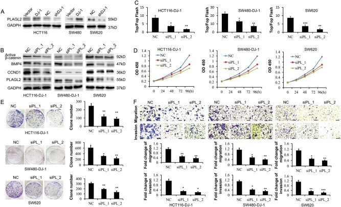 DJ-1 activates Wnt signaling by enhancing PLAGL2 expression. a Western blot analysis of PLAGL2 expression in HCT116, SW480, and SW620 cells stably transfected with DJ-1 cDNA, DJ-1 shRNA, or vector. b – f HCT116-DJ-1, SW480-DJ-1, and SW620 cells were transfected with two specific PLAGL2 (PL) siRNAs, respectively. Then, protein levels of activated-β-catenin, BMP4, CCND1, and PLAGL2 were determined by Western blot ( b ); Wnt activity was analyzed by TOP-Flash/FOP-Flash assay ( c ); proliferation of CRC cells was examined by CCK8 kit ( d ); proliferative activity was detected by colony formation assay ( e ); migration and invasion activity were assessed by transwell migration and matrigel invasion assays ( f , scale bar, 100 μm). Migration was analyzed at 24 h, invasion at 48 h. * P