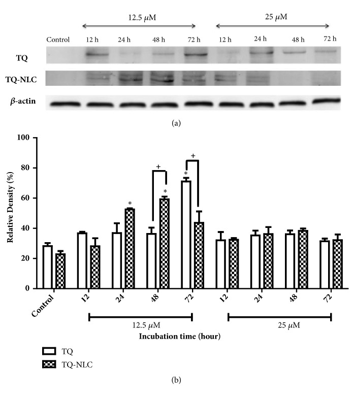 Keap1 expression in Hep3B upon treatment with TQ or TQ-NLC. (a) Western blot analysis of Keap1 protein expression after treatment with indicated concentrations of TQ or TQ-NLC for 12, 24, 48, and 72 hours. Whole cell protein lysates were analyzed via Western blotting using antibodies against Keap1. (b) Protein levels were quantified using the densitometry analysis of Image J and expressed as a percentage of relative density. Data are presented as mean ± SEM and represent three independent experiments. Statistically significant differences are indicated as ( ∗ p