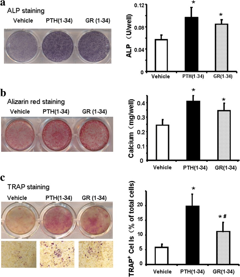 The effects of hPTH(1–34) and GR(1–34) on osteogenesis and osteoclastogenesis in bone marrow cells of ORX mice. At the 2nd week of administration, ALP activity of the cells in osteogenic medium were stained and measured with a <t>BCIP/NBT</t> Color Development Kit ( a ); the mineralized nodules were stained with Alizarin Red S solution and calcium deposition was quantified spectrophotometrically ( b ). At the 1st week of administration, TRAP staining was performed and the percentage of TRAP+ cells to total cells were counted ( c ). [Three independent experiments were repeated for ( a b ) and six for ( c ); 10 fields at 100 magnitude were randomly selected for TRAP+ cell counting; * P