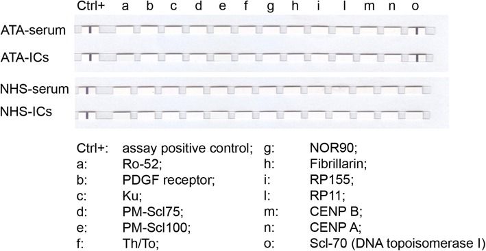 TaqMan® Gene Expression assays against SSc-specific antigens of PEG-precipitated ICs and corresponding sera evaluated by EUROLINE-SSc profile kit. One ATA-IC and one NHS-IC presented as representative assay. CTR+, assay-positive control. a, Ro-52; b, PDGF receptor; c, Ku; d, PM-Scl75; e, PM-Scl100; f, Th/To; g, NOR90; h, Fibrillarin; i, RP155; l, RP11; m, CENP B; n, CENP A; o, Scl-70 (DNA topoisomerase I). ATA anti-DNA topoisomerase I antibodies, IC immune complex, NHS normal healthy subjects