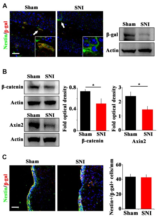 Effects of chronic pain on Wnt activity in ventral hippocampus. (A) Double-immunostaining of Nestin/β-gal and Western-blotting of β-gal in the ventral hippocampus of sham-injured and SNI-treated Topgal mice at 21 dpi. (B) Western-blotting of β-catenin and Axin2 in the ventral hippocampus of sham-injured and SNI-treated mice at 21 dpi. (C) Double-immunostaining and quantification of Nestin/β-gal in the SVZ of sham-injured and SNI-treated Topgal mice at 21 dpi. Inserts in (A) are magnified typical Nestin/β-gal-positive cells in each group, which were pointed by arrows. Bars = 25 μm in (A) and 50 μm in (C) . Values represent mean ± SE. Unpaired, two tailed Student's t -tests were performed in (B,C) . * P
