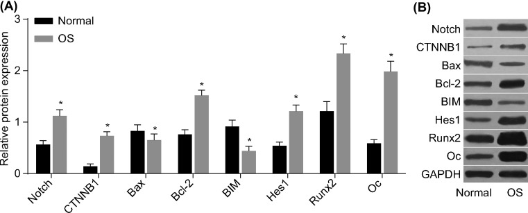 Western blot analysis of the relative protein expression of Notch, CTNNB1, Bax, Bcl-2, BIM, Hes1, Runx2, and osteocalcin in OS and normal bone tissues ( A ) Relative protein expression of Notch, CTNNB1, Bax, Bcl-2, BIM, Hes1, Runx2, and osteocalcin. ( B ) Protein bands of Notch, CTNNB1, Bax, Bcl-2, BIM, Hes1, Runx2, and osteocalcin by Western blot analysis; * P
