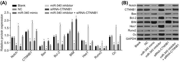 Western blot analysis of the protein expressions of Notch, CTNNB1, Bax, <t>Bcl-2,</t> BIM, Hes1, Runx2, and osteocalcin in each transfected group ( A ) Relative protein expression of Notch, CTNNB1, Bax, Bcl-2, BIM, Hes1, Runx2, and osteocalcin in each group. ( B ) Protein bands of Notch, CTNNB1, Bax, Bcl-2, BIM, Hes1, Runx2, and osteocalcin by Western blot analysis; * P