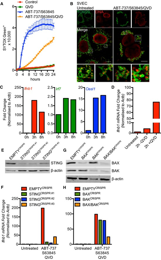 MOMP ‐induced mt DNA release initiates a cGAS ‐ STING ‐dependent type I interferon response SVEC cells treated with 10 μM ABT‐737 and 10 μM S63845 ± 20 μM qVD‐OPh. Cell viability was analysed using an IncuCyte live‐cell imager and SYTOX Green exclusion. Data are expressed as mean ± SEM, representative of two independent experiments. Airyscan images of SVEC cells treated with 10 μM ABT‐737, 10 μM S63845 and 20 μM qVD‐OPh for 3 h, immunostained with anti‐TOM20 and anti‐DNA antibodies. Scale bar = 10 μm. Representative images from three independent experiments. Ifnb1 , Irf7 and Oasl1 mRNA expression in SVEC cells treated with 10 μM ABT‐737, 10 μM S63845 and 20 μM qVD‐OPh for 3 h. Data are representative of three independent experiments. Ifnb1 mRNA expression in SVEC cells treated with 10 μM ABT‐737, 10 μM S63845 ± 20 μM qVD‐OPh for 2 h. Data are representative of two independent experiments. STING expression in CRISPR‐Cas9‐mediated STING‐deleted SVEC cells using three independent sgRNA sequences. Ifnb1 mRNA expression in STING CRISPR‐Cas9‐deleted SVEC cells treated with 10 μM ABT‐737, 10 μM S63845 and 20 μM qVD‐OPh for 3 h. Data are representative of two independent experiments. BAX and BAK expression in SVEC cells harbouring CRISPR‐Cas9‐mediated deletion of BAX, BAK or BAX/BAK. Ifnb1 mRNA expression in BAX, BAK or BAX/BAK CRISPR‐Cas9‐deleted SVEC cells treated with 10 μM ABT‐737, 10 μM S63845 and 20 μM qVD‐OPh for 3 h. Data are representative of two independent experiments. Source data are available online for this figure.