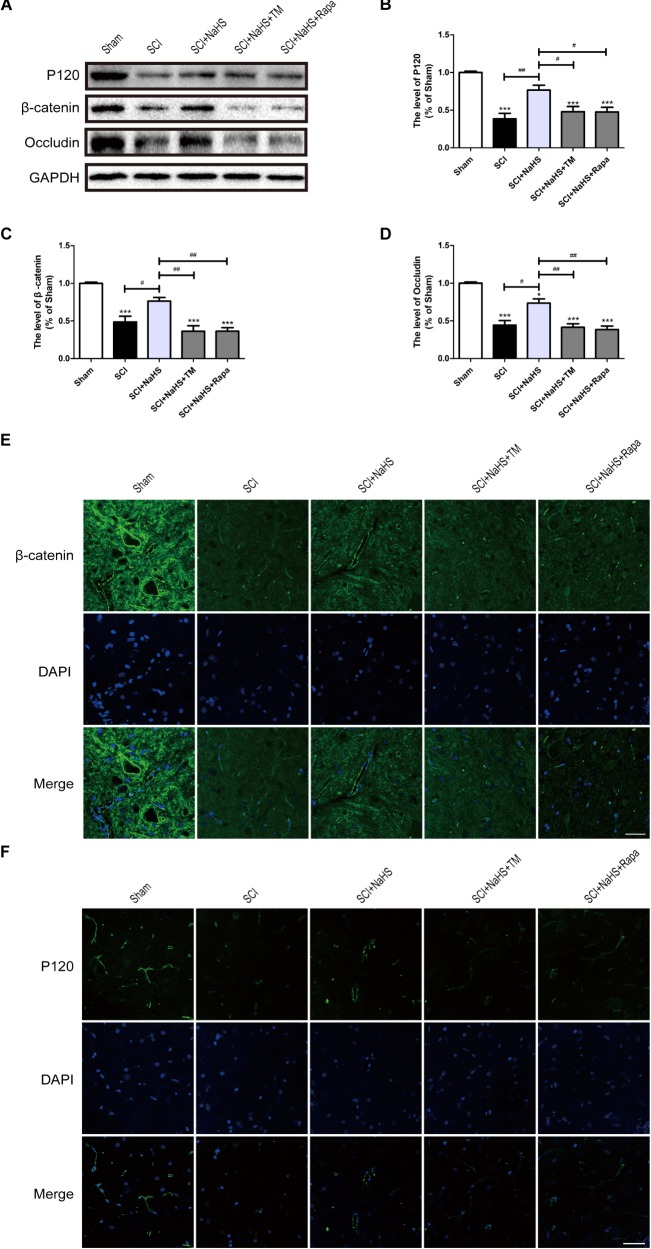 NaHS prevents the loss of TJ and AJ proteins by inhibiting ER stress and autophagy at 1d post-SCI. (A) TM and Rapa were applied to specifically activate ER stress and autophagy, respectively. The rats were randomly divided into five groups: (i) the Sham group; (ii) the SCI model group; (iii) the SCI model with NaHS treatment (SCI + NaHS) group; (iv) the SCI model with NaHS and TM treatment (SCI + NaHS + TM) group; and (v) the SCI model with NaHS and Rapa treatment (SCI + NaHS + Rapa) group. Representative western blots of P120, β-catenin and Occludin from each group. (B–D) Quantification of the expression of P120, β-catenin, and Occludin. The relative band density value was normalized to that of GAPDH. All data are presented as the mean ± SEM, n = 5. ∗∗∗ P