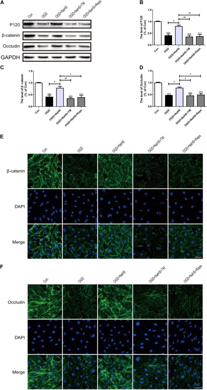NaHS protects OGD-treated HUVECs by inhibiting ER stress and autophagy in vitro . (A) Representative western blots of P120, β-catenin and Occludin for each group. (B–D) Quantification of the expression of P120, β-catenin and Occludin. The relative band density value was normalized to that of GAPDH. All data are presented as the mean ± SEM. ∗∗∗ P