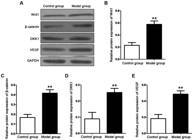 Detection of relevant protein expression levels in the aorta of the rats in each group with western blot analysis. (A) Strip figure. (B) Relative protein expression level of Wnt1. (C) Relative protein expression level of β-catenin. (D) Relative protein expression level of DKK1. (E) Relative protein expression level of VEGF. The protein expression levels of Wnt1, β-catenin, DKK1 and VEGF in the aorta of the rats in the model group are significantly higher than those of the rats in the control group (**P