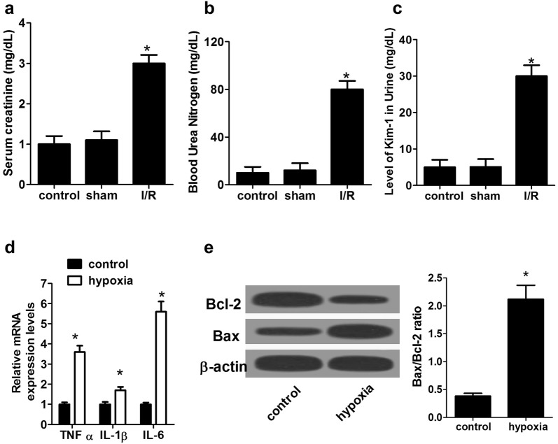 Evaluation of rat AKI model following I/R surgery and NRK-52E cell model following hypoxia treatment. The serum levels of SCr ( a ), BUN ( b ), and urine Kim-1 ( c ) in I/R-induced rat AKI models at 24 h after surgery were measured. d The mRNA expressions of TNF-α, IL-1β, and IL-6 in hypoxia-induced NRK-52E cell I/R model were detected by qRT-PCR. e The protein levels of Bcl-2 and Bax in hypoxia-induced NRK-52E cell I/R models were assessed by western blot. n = 6 rats/group. * P