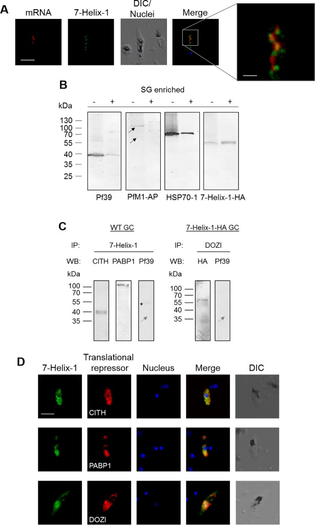 Localization of 7-Helix-1 in SGs and interaction with translational repressors. (A) Co-localization of 7-Helix-1 with mRNA-aggregates. Mature WF NF54 gametocytes were subjected to mRNA-FISH-IFA and mRNA was labeled with a <t>biotinylated</t> <t>oligo-dT25</t> probe (red); counterlabeling was performed using mouse anti-7-Helix-1rp2 antisera (green). Nuclei were highlighted by Hoechst33342 nuclear stain (blue). Frame indicates the area chosen for enlargement. DIC, differential interference contrast. Bar, 5 μm; enlargement, 1 μm. (B) Accumulation of 7-Helix-1 in SG fractions. Gametocytes of line 7-Helix-1-HA were stressed by treatment with sodium arsenite for 1 h and a SG core fraction enrichment was conducted. Lysates of 7-Helix-1-HA gametocytes (-) and of enriched SGs (+) were subjected to WB, using mouse antisera directed against Pf39 (~39 kDa) or PfM1-AP (~126 and 68 kDa, black arrows) or rabbit antibodies against HSP70-1 (~70 kDa) or the HA-tag to detect 7-Helix-1-HA (~60 kDa). (C) Co-immunoprecipitation of 7-Helix-1 with CITH, PABP1 and DOZI. Lysates of WT NF54 or 7-Helix-1-HA gametocytes were subjected to co-immunoprecipitation assays using polyclonal mouse anti-7-Helix-1rp2 antisera or polyclonal rabbit anti-DOZI antisera, followed by WB using rabbit anti-CITH, anti-PABP1 and anti-HA antibodies or mouse anti-Pf39 antibody to detect precipitated proteins. Grey arrow indicates the expected running line in the negative control. Asterisk indicates a band corresponding to the precipitation antibody. (D) Co-localization of 7-Helix-1 with CITH, PABP1 and DOZI. WT NF54 gametocytes were immunolabeled with mouse anti-7-Helix-1rp2 antisera (green) and rabbit anti-CITH, anti-PABP1, or anti-DOZI antibodies (red). Nuclei were highlighted by Hoechst33342 nuclear stain (blue). DIC, differential interference contrast. Bar, 5 μm. Results are representative of three independent experiments.