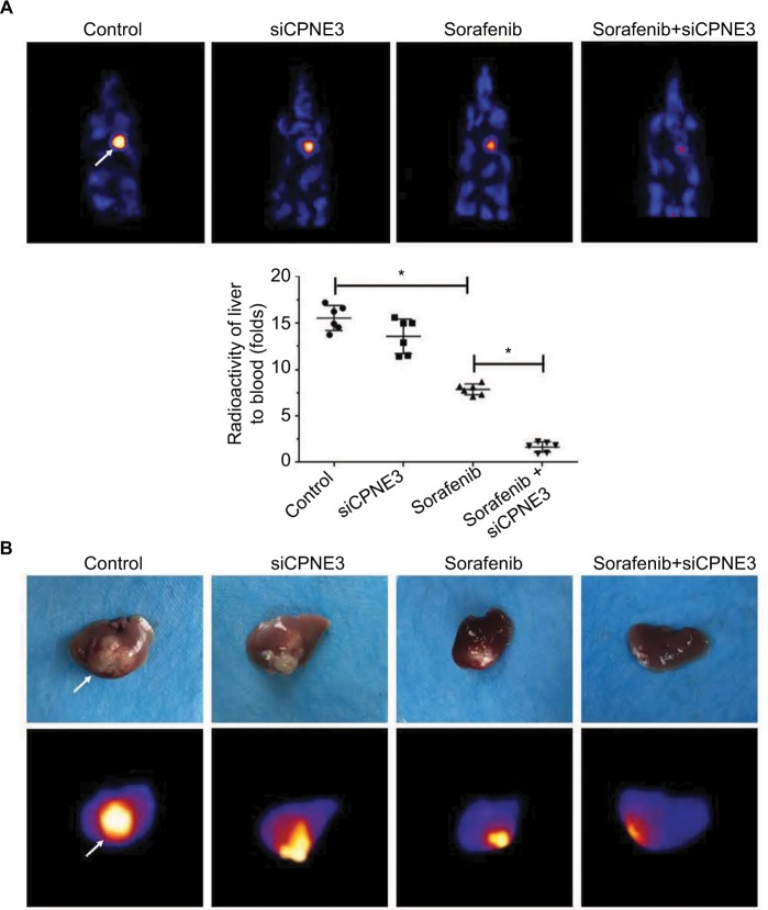 Silencing copine-III enhances the effect of sorafenib on MHCC97-H cell intrahepatic growth. Notes: MHCC97-H cells, which were injected with control siRNA or siCPNE3, were injected into liver lobes to form intrahepatic nodules. Next, nude mice were treated with a solvent control or sorafenib. After 4–6 weeks of growth, tumor nodules formed by MHCC97-H cells in liver organs were examined by positron emission tomography (PET)/CT scanning. ( A ) Results showed the PET/CT images of whole animals or radioactivation of liver to blood; ( B ) images of tumor modules or PET/CT results from the liver. * P