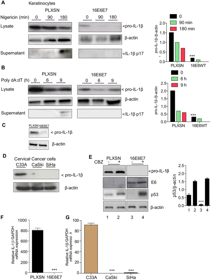 HPV16 oncoproteins inhibit pro-IL-1β levels. (A) Human keratinocytes transduced with pLXSN or 16E6E7 were stimulated with AIM2 and (B) NLPR3 ligands and both pro-IL-1β and IL-1β from cell lysates or supernatants were analysed by immunoblotting. β-actin was used as a loading control. Densitometry analysis was performed n = 3. (C) Immunoblotting of pro-IL-1β in human keratinocytes transduced with pLXSN or 16E6E7. (D) Cervical cancer cell lines were lysed and immunoblotting for pro-IL-1β was performed. n = 4 (E) Human keratinocytes transduced with pLXSN or 16E6E7 were treated for 24 h with N-CBZ-Leu-Leu-Leu-al. Cells were harvested and p53, E6 as well as pro-IL-1β levels were determined by immunoblotting. Right, p53 densitometry levels were normalized to β-actin. Below, immunoblot analysis of the 16E6 protein. n = 3. (F) RNA was extracted from Human keratinocytes transduced with pLXSN or 16E6E7 and IL-1β transcripts relative expression was determined by RT-qPCR. n = 5. (G) RNA was extracted from patient derived cervical cancer cell lines and IL-1β transcripts were determined by RT-qPCR. n = 6. Panels A-E. Data are representative of n independent experiments performed in triplicate. Shown are the mean ± SEM with ***, P