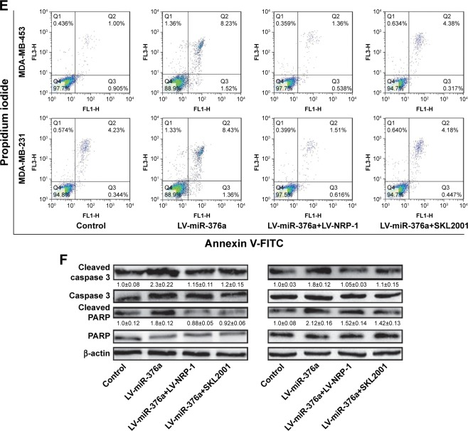 Overexpression of NRP-1 or inhibition of Wnt/β-catenin signaling rescues the inhibitory effects of miR-376a on breast cancer cell progression. Notes: ( A and B ) The cell viability was examined in MDA-MB-453 and MDA-MB-231 cells with miR-376a overexpression as well as NRP-1 knockdown or SKL2001 treatment. ( C ) Cell migration ability was detected in cells depicted in ( A ). ( D ) The expression of epithelial (E-cadherin) and mesenchymal markers (Vimentin) was measured in cells depicted in ( A ). ( E ) Cell apoptosis was evaluated in cells depicted in ( A ). ( F ) The expression of apoptosis executors (cleaved caspase 3 and cleaved PARP) was determined in cells depicted in ( A ). Data are presented as mean±SD; * P