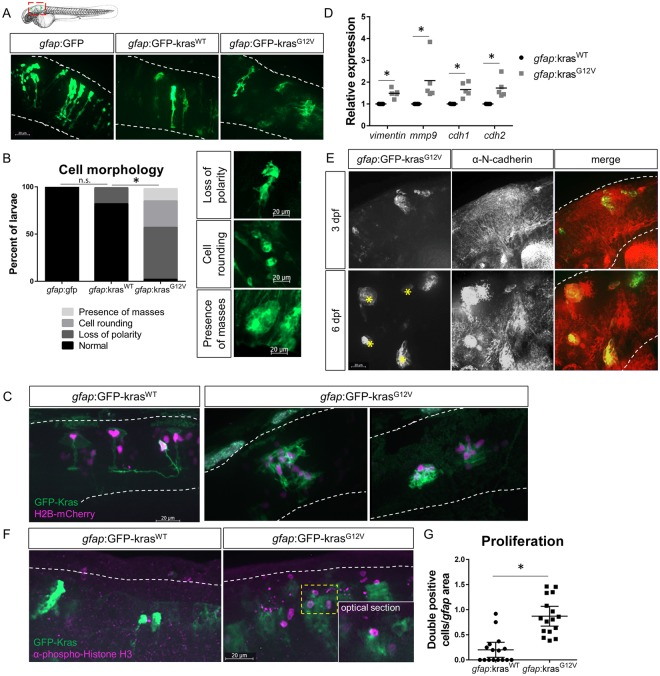 Expression of oncogenic Kras from an astrocyte-specific promoter drives transformation in the larval hindbrain. Live-imaging of mosaic gfap :GFP, gfap :GFP-kras WT , and gfap :GFP-kras G12V expression at 3 days post-fertilization (dpf) in the larval zebrafish hindbrain ( A ). Red dashed outline in schematic of A shows approximate field of view and image orientation for all figures. White dashed lines in representative images denote the hindbrain region of interest in all figures. Morphology of expressing cells was categorized based on characteristics observed throughout the population of injected larvae and larvae were assigned to category of most severe cell morphology identified ( B , n = 19 gfap :GFP, 17 gfap :kras WT , and 38 gfap :kras G12V larvae; Chi-squared analysis performed). gfap :H2B-mCherry was mosaically co-expressed with gfap :kras plasmids to label nuclei of Kras-expressing cells ( C ). qRT-PCR was performed on whole-larvae isolates for EMT genes including vimentin , mmp9 , cdh1 ( e-cadherin ), and cdh2 ( n-cadherin ). Cq were normalized to housekeeping gene rps11 and then normalized to kras WT condition ( D , n = 5 kras WT and 5 kras G12V replicates). Larvae were fixed at 3 dpf or 6 dpf and immunostained for N-cadherin ( E ). N-cadherin co-localization was observed in gfap :kras G12V -expressing masses at 6 dpf (yellow asterisks). Kras-expressing larvae were fixed at 3 dpf and immunostained for proliferation marker phospho-Histone H3 (pH3, F ). pH3/GFP double positive cells were quantified using confocal optical sectioning (single optical slice from yellow dashed box shown in inset) and normalized to the total gfap -expressing area (G, n = 16 larvae/condition). *p