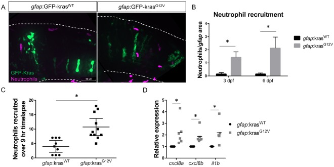 Neutrophils are recruited to the tumor-initiating microenvironment. Live-imaging of neutrophils in the hindbrain of Tg( mpx :mCherry) larvae expressing gfap :kras WT or kras G12V at 3 dpf ( A ). Neutrophils within the field of view were quantified and normalized to the total gfap -expressing area within the same field of view at 3 and 6 dpf ( B , n = 24 kras WT 3dpf, 42 kras G12V 3 dpf, 24 kras WT 6 dpf, and 30 kras G12V 6 dpf larvae). Live time-lapse imaging was performed for 9 hours beginning at 3–3.5 dpf and total neutrophils recruited to the hindbrain during the period of imaging were quantified ( C , n = 9 kras WT and 11 kras G12V larvae). qRT-PCR was performed on whole-larvae mRNA isolates for several neutrophil recruiting chemokines implicated in the tumor microenvironment including cxcl8a , cxcl8b , and il1b ( D , n = 6 replicates for cxcl8a/b , 5 replicates for il1b , normalized as in Fig. 1D ). *p