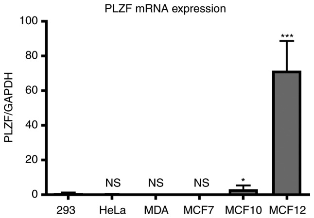 Reverse transcription-quantitative polymerase chain reaction assay of PLZF mRNA expression in breast cancer cells. Results are normalized to 18S expression, and are reported as a fold-change relative to the levels of PLZF mRNA in 293 cells and are presented as the mean ± standard deviation (n=3). *P