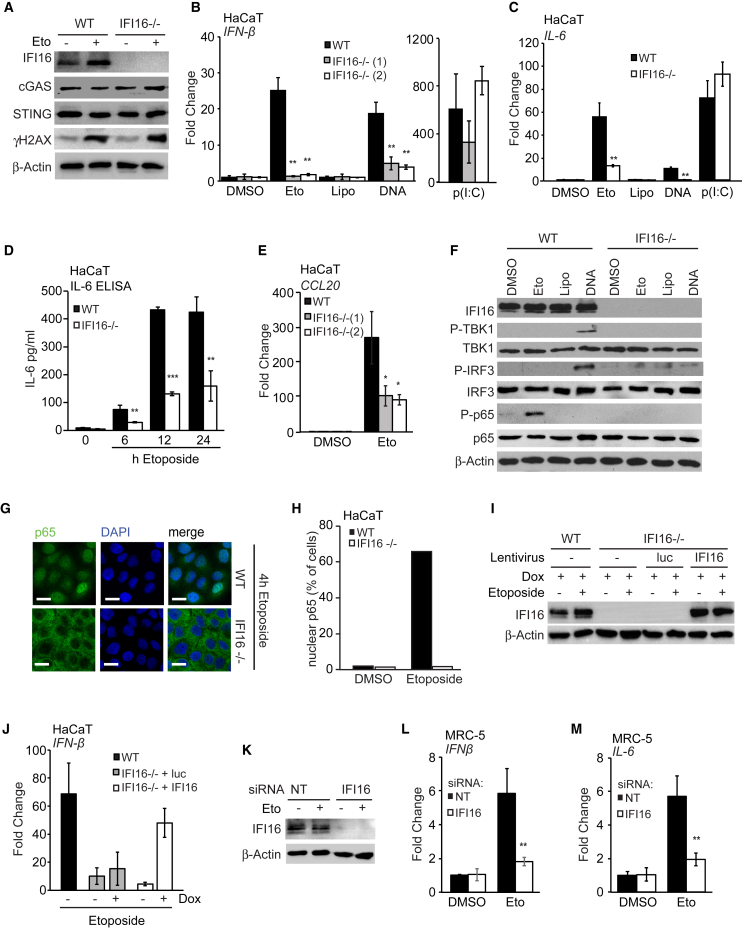 The Innate Immune Response to Etoposide-Induced Damage Involves IFI16 (A) Immunoblotting analysis of WT and IFI16 −/− HaCaT cells stimulated with 50 μM etoposide or DMSO for 6 hr. (B and C) WT HaCaT cells and two IFI16 −/− cell clones were treated for 6 hr with DMSO or 50 μM etoposide, mock transfected (Lipo), or transfected with 1 μg/mL HT-DNA or 100 ng/mL poly(I:C). IFN-β (B) or IL-6 (C) mRNA was quantified by qRT-PCR. (D) ELISA analysis of IL-6 protein in supernatants from WT and IFI16 −/− HaCaT cells treated with 50 μM etoposide for indicated times. (E) qRT-PCR analysis of CCL20 mRNA in WT and IFI16 −/− HaCaT cells treated with DMSO or 50 μM etoposide for 6 hr. (F) WT and IFI16 −/− HaCaT cells were treated as in (B) for 4 hr before analysis of protein expression by immunoblotting. (G) WT and IFI16 −/− HaCaT cells grown on coverslips were treated with 50 μM etoposide for 4 hr and fixed and stained for p65 (green) and DNA (DAPI, blue). Scale bar, 20 μm. (H) Quantification of p65 nuclear translocation in cells from (G). (I) Immunoblotting analysis of WT HaCaT cells and IFI16 −/− HaCaT cells reconstituted with lentiviruses for the expression of Luciferase (luc) or IFI16 as indicated. Cells were treated with doxycycline for 24 hr to induce expression and then stimulated with 50 μM etoposide for 6 hr. (J) qRT-PCR analysis of IFN-β mRNA in cells treated as in (I) as indicated. (K–M) MRC-5 fibroblasts treated with non-targeting (NT) or IFI16 -targeting siRNA pools for 48 hr before treatment with 50 μM etoposide or DMSO for 6 hr. IFI16 protein expression was analyzed by immunoblotting (K). IFN-β (L) and IL-6 (M) mRNA levels were analyzed by qRT-PCR. Data are presented as mean values of biological triplicates ± SD. See also Figures S3 G–S3L.
