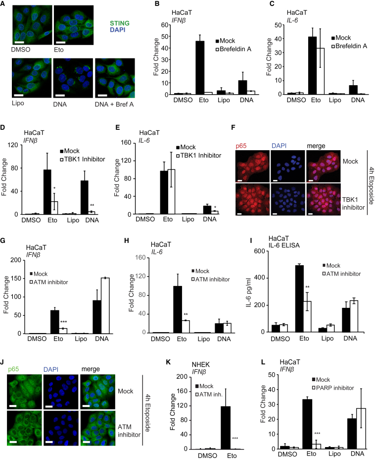Etoposide-Induced NF-κB Activation Involves DNA Damage Factors, but Not TBK1 Activity (A) HaCaT cells grown on coverslips were pre-treated for 30 min with 3 μg/mL brefeldin A where indicated before stimulation with 50 μM etoposide or transfection of 1 μg/mL HT-DNA. Cells were fixed and stained for STING (green) and DNA (DAPI, blue). Scale bar, 20 μm. (B and C) HaCaT cells were pre-treated for 30 min with 3 μg/mL brefeldin A before treatment with 50 μM etoposide or DMSO, mock transfection (Lipo), or transfection of 1 μg/mL HT-DNA for 6 hr. IFN-β (B) and IL-6 (C) mRNA expression was analyzed by qRT-PCR. (D and E) HaCaT cells were pre-treated for 1 hr with 2 μM TBK1 inhibitor MRT67307 and stimulated as in (B) before qRT-PCR analysis of IFN-β (D) and IL-6 (E) mRNA expression. (F) HaCaT cells grown on coverslips were pre-treated with 2 μM TBK1 inhibitor MRT67307 for 1 hr before 4 hr of stimulation with 50 μM etoposide. Cells were fixed and stained for p65 (red) and DNA (DAPI, blue). Scale bar, 20 μm. (G and H) HaCaT cells were pre-treated for 1 hr with 10 μM ATM inhibitor KU55933 and stimulated as in (B). IFN-β (G) and IL-6 (H) mRNA expression was quantified by qRT-PCR. (I) ELISA analysis of IL-6 secretion in supernatants from cells treated as in (G) and stimulated for 24 hr. (J) HaCaT cells grown on coverslips were pre-treated for 1 hr with 10 μM KU55933 before 4 hr of stimulation with 50 μM etoposide. Cells were fixed and stained for p65 (green) and DNA (DAPI, blue). Scale bar, 20 μm. (K) qRT-PCR analysis of IFN-β mRNA expression in NHEK cells pre-treated for 1 hr with 10 μM KU55933, followed by treatment with 50 μM etoposide for 24 hr. (L) qRT-PCR analysis of IFN-β mRNA in HaCaT cells pre-treated for 1 hr with 10 μM PARP inhibitor PJ34 before treatment as in (B) for 6 hr. Data are presented as mean values of biological triplicates ± SD. See also Figure S5 .