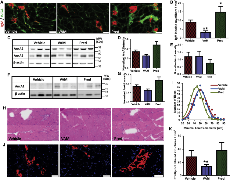 Vamorolone Reduces In Vivo Sarcolemmal Damage and Reduces Adipogenic Loss of Dysferlinopathic Muscle (A) Gastrocnemius muscle cryosections from B6A/J animals treated for 3 months with vehicle (cherry syrup), or 30 mg/kg vamorolone or prednisolone were immunostained for immunoglobulin M <t>(IgM;</t> red) and wheat germ agglutinin (WGA; green) to identify myofibers with sarcolemmal injury (marked by IgM entry). (B) Quantification of IgM-labeled myofibers in gastrocnemius muscles from B6A/J mice treated as indicated (n = 6 muscles). (C–G) Western blot analysis for the expression of Annexin proteins in the gastrocnemius muscle of B6A/J mice treated as indicated. (C and F) Images and (D, E, and G) quantification of Annexin protein level normalized to the loading control (β-actin) (n = 3 muscles each). (H) Image of gastrocnemius muscle cross-section stained with H E (I) quantification of the minimum Feret's diameter in gastrocnemius myofiber (n > 200 myofibers from three muscles each). (J) Images of gastrocnemius muscle sections labeled for <t>Perilipin-1</t> (red) and nuclei (DAPI, blue). (K) Quantification of perilipin-positive foci (n = 6 muscles each). All scale bars represent 50 μm, and all p values represent unpaired Mann-Whitney t test, *p