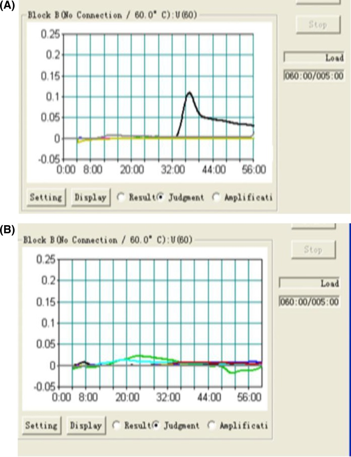LAMP assay for A. baumannii amplification of the recA gene using a <t>Loopamp</t> <t>Realtime</t> Turbidimeter <t>LA-320c.</t> ( A ) A. baumannii , amplification curve observed within 36 min of amplification. ( B ) P. aeruginosa, S. maltophilia, S. aureus and P. mirabilis , no amplification curve observed with recA gene amplification.