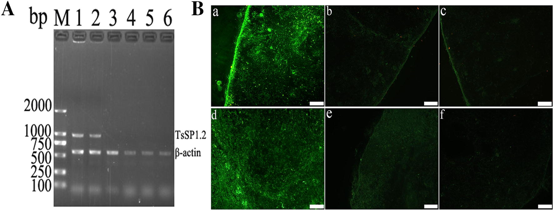 The in vivo transcription and expression of TsSP1.2 in mice vaccinated with TsSP1.2 DNA/ S. typhimurium. A RT-PCR analysis of TsSP1.2 mRNA transcription. TsSP1.2 mRNA was detected in spleen (lane 1) and MLN (lane 2) of TsSP1.2-immunized mice, either in spleen (lane 3) or in MLN (lane 4) of mice vaccinated with only empty pcDNA3.1, not in spleen (lane 5) and MLN (lane 6) of mice inoculated with only PBS. B IFT detection of TsSP1.2 expression. The expression of TsSP1.2 was detected in spleen (a) and MLN (d) of TsSP1.2-immunized mice by IFT with anti-rTsSP1.2 serum, but not in spleen (c) and MLN (f) by IFT with pre-immune serum. By using anti-rTsSP1.2 serum, no distinct staining was observed in spleen (b) and MLN (e) of mice inoculated with only empty pcDNA3.1. Scale bar: 100 μm.