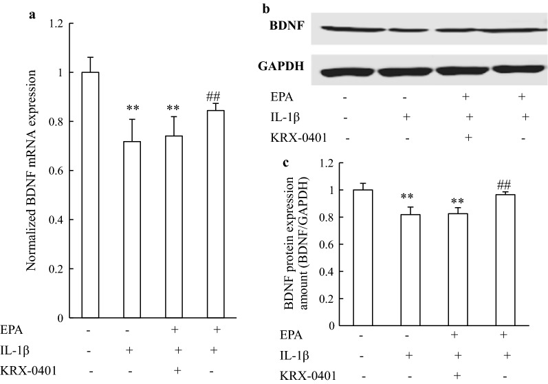 EPA reversed the inhibitory effects of IL-1β on the expression of BDNF via the <t>Akt/CREB</t> pathways in cultured rat hippocampal neurons. a BDNF mRNA and protein, b expression were measured by real-time PCR and western blotting, respectively. c Relative levels of BDNF protein were determined by densitometry of the immunoblots. Data from PCR and western blotting were normalized by taking the value of the control group as 1. ** P