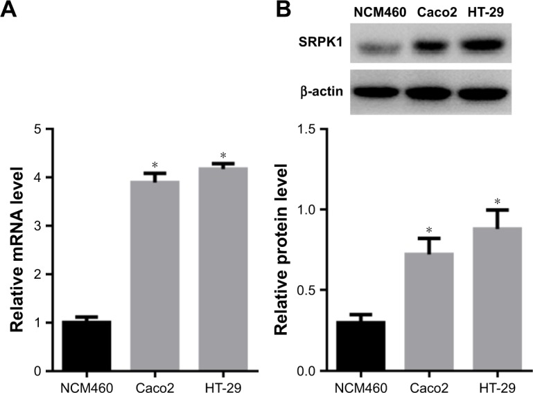 Expression levels of SRPK1 in CRC cells. Notes: ( A ) SRPK1 mRNA levels in Caco2 and HT-29 CRC cells were detected by RT-qPCR, compared with that in <t>NCM460</t> cells; ( B ) SRPK1 protein levels in Caco2 and HT-29 CRC cells were detected by Western blot. * P