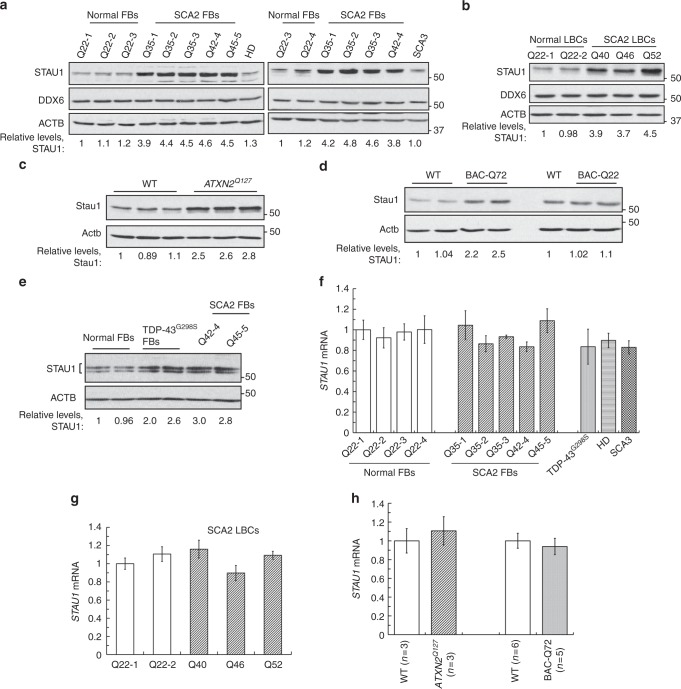 Staufen1 protein but not mRNA steady-state levels are increased in neurodegenerative disease cells and tissues. Western blot analysis of SCA2- FBs ( a ) and LBCs ( b ) show increased STAU1 levels compared with normal controls. DDX6 levels are unchanged. HD and SCA3 patient (polyQ expanded) FBs were used as additional controls. Four normal and five SCA2 FBs, and two normal and three SCA2 LBCs were used. c , d Western blot analyses of ATXN2 Q127 ( c ) and BAC-Q72 ( d ) mouse cerebellar extracts (24 weeks of age) showing increased Stau1 levels compared with wild-type or BAC-Q22 controls ( n = 2–3 animals per group). e Western blot of FB extracts from an ALS patient with the TDP-43 G298S mutation show increased STAU1 levels. β-Actin was used as loading control and representative blots of three independent experiments are shown. f – h STAU1 RNA levels are unaltered in SCA2 and ALS cells and SCA2 mice. qRT-PCR analyses of STAU1 mRNA in SCA2 FBs and ALS FB with TDP-43 G298S mutation ( f ) or SCA2 LBCs ( g ). h qRT-PCR analyses of cerebellar RNAs from ATXN2 Q127 and BAC-Q72 mice compared to wild-type littermates (24 weeks of age; n = animals per group). Gene expression levels were normalized to Actb