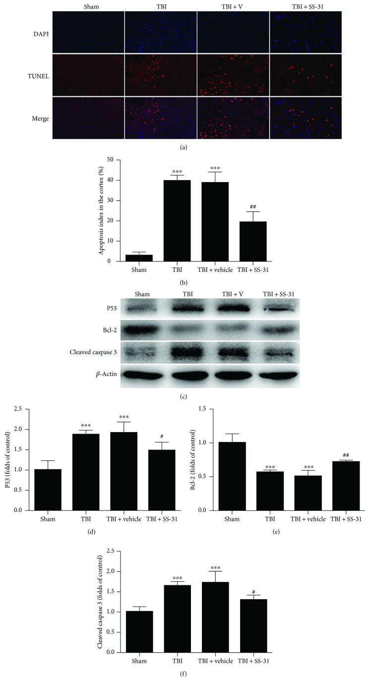 Treatment with SS-31 alleviated the neural apoptosis. (a, b) The TUNEL assay was employed to analyze the apoptotic index 1 day after TBI. SS-31 treatment significantly reduced the percentage of apoptotic neurons. n = 6 per group. (c) Western blot showed the pro- and antiapoptotic proteins in the contusion cortex. (d–f) Expression of the P53, Bcl-2, and cleaved caspase 3 protein levels were normalized to the level of β -actin. P53 and cleaved caspase 3 were significantly decreased while the Bcl-2 protein level was increased in the TBI + SS-31 group compared with the vehicle group. n = 6 per group. Scale bar 50 μ m. Data are presented as mean ± SEM; ∗∗∗ P