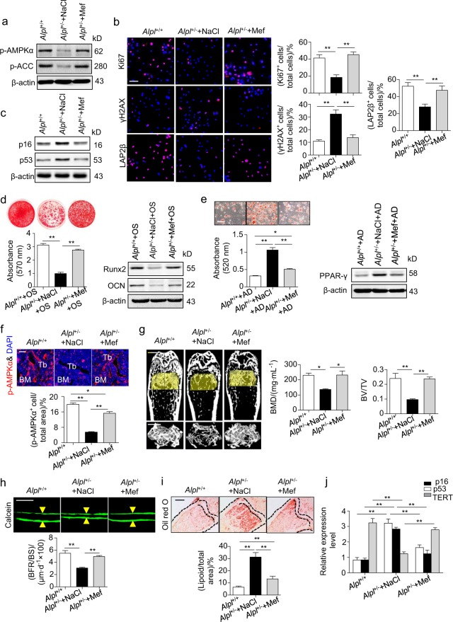 Metformin treatment prevents bone ageing in Alpl +/- mice by rescuing the impaired function of MSCs. We injected 60 mg⋅kg –1 metformin into the femoral bone marrow cavity of 4-month-old Alpl +/- mice every 2 weeks for 1 month (total of two injections), and NaCl was used as a control. a Expression levels of p-AMPKα and p-ACC in MSCs from three groups were analyzed by western blotting. b Immunostaining of Ki67, γH2AX and LAP2β in MSCs from control and metformin-treated mice. Quantification of Ki67 + , γH2AX + and LAP2β + is shown in the right panel. Scale bars: 50 μm. c Expression levels of p16 and p53 in MSCs were examined by western blotting. d Alizarin Red staining and quantification of mineralized nodules were performed on day 21 after the osteogenic induction (OS) in the MSCs from Alpl +/+ and Alpl +/- mice injected with NaCl or metformin. Expression levels of Runx2 and OCN were examined by western blotting on day 7 after induction. e Oil Red O staining and quantification of fat depots were performed on day 14 after the adipogenic induction (AD). Scale bars, 100 μm. PPAR-γ expression was examined on day 7 after induction by western blotting. f Immunostaining analysis showing the expression of p-AMPKα (red) and nuclear staining (blue, DAPI) in the proximal femoral diaphysis. Quantification of p-AMPKα + cells is indicated in the bottom panel. g μCT images and quantification of BMD and BV/TV. Scale bars, 1 mm. h Images of calcein double labeling of trabecular bone with quantification of BFR/BS. Scale bars, 50 μm. i Oil Red O staining images and quantitative analysis of the area of adipose tissue over the total area of the proximal femoral diaphysis. Scale bars, 500 μm. j Expression levels of ageing-specific genes were examined via qRT-PCR. n = 8 per group. The data are presented as the means ± s.d. of each independent experiment performed in triplicate. * P