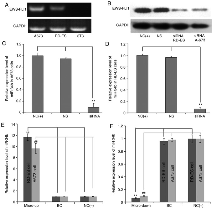 (A) Detection of EWS-FLI1 fusion gene expression in RD-ES and A673 cell lines using reverse transcription-polymerase chain reaction. (B) Expression levels of the fusion gene were downregulated in RD-ES and A-673 cells following siRNA transfection. (C) miR-34b expression in A673 cells was downregulated following siRNA transfection. (D) miR-34b expression in RD-ES cells was downregulated following siRNA transfection. (E) miR-34b expression was upregulated by the precursor of miR-34b in RD-ES and A-673 cells. (F) miR-34b expression was downregulated by the inhibitor of miR-34b in RD-ES and A-673 cells. BC, cell lines that were treated with <t>lentiviral</t> vector alone; NC(+), normal cell lines that were not transfected with siRNA; NS, cells transfected with non-targeting siRNA; siRNA, siRNA-transfected cells; NC(−), normal cell lines that were transfected with specific siRNA targeting the EWS-FLI1 fusion gene; Micro-up, NC(−) cell lines treated with precursor miR-34b sequences; Micro-down, NC(+) cell lines treated with complementary sequences of miR-34b. **P