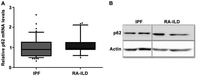 (A) mRNA expression of p62 in patients with IPF (n=55) and RA-ILD (n=20). Data were analyzed by RT-qPCR and normalized to GAPDH . No significant differences, as determined by the Mann-Whitney U test (P > 0.05). Data are represented as the median with 10–90% range. (B) Representative western blot showing similar protein levels of p62 in BALF cells from patients with IPF and RA-ILD. Analysis of patients with IPF (n=5) and RA-ILD (n=3) revealed no significant differences in the p62 protein levels (p62/actin). RA-ILD, rheumatoid arthritis-interstitial lung disease; IPF, idiopathic pulmonary fibrosis; BALF, bronchoalveolar lavage fluid.
