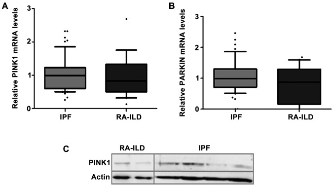 Measurement of (A) PINK1 <t>mRNA,</t> (B) PARKIN mRNA and (C) PINK1 protein levels revealed similar results in <t>BALF</t> cells derived from patients with IPF and RA-ILD. (A and B) PINK1 and PARKIN expression levels showed no statistically significant differences between the IPF and RA-ILD samples. Data were normalized to GAPDH and are represented as the median with 10–90% range. No significant differences, as determined by the Mann-Whitney U test (P > 0.05). (C) Western blot analysis of pink1 protein normalized to actin. No significant difference, as determined by the Mann-Whitney U test (P > 0.05). RA-ILD, rheumatoid arthritis-interstitial lung disease; IPF, idiopathic pulmonary fibrosis; BALF, bronchoalveolar lavage fluid.
