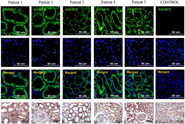 <t>ADAM10</t> expression in human renal tissues. ADAM10 expression (green) in renal biopsy samples from CKD patients (stages 2–3) was analyzed by immunofluorescence, with controls derived from living donor biopsies. Cell nuclei were stained with DAPI. Scale bar represents 50 µm. a – e Immunohistochemical staining of ADAM10 in the renal tissues of renal biopsy samples from CKD patients (stages 2–3). Original magnification, × 400