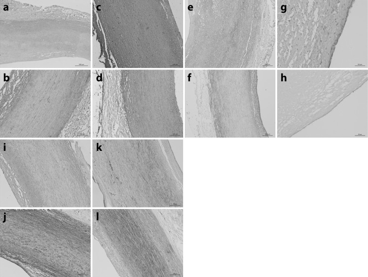 Sections of ( a , c , e , g , i , k ) native and ( b , d , f , h , j , l ) acellular human aorta labelled using monoclonal antibodies against ( a , b ) Collagen type I ( c , d ) Collagen type III ( e , f ) Collagen type IV ( g , h ) Von Willebrand factor, ( i , j ) Fibronectin and ( k , l ) Laminin. Images were acquired using Kohler illumination and a × 10 objective, scale bars represent 200 µm