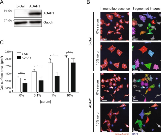 ADAP1 restrains the serum-induced increase in cell size of cultured cardiomyocytes. ( A ) Western blot detection of adenovirus-mediated 3xFLAG-hADAP1 overexpression (MOI of 50) in rat neonatal ventricular cardiomyocytes (RNVC) cultured for 72 h post-infection. ( B ) RNVC were infected with either β-Gal- (negative control) or ADAP1-overexpressing adenovirus and were cultured for 72 h in the absence (0%) or presence (10%) of serum. Representative images of α-Actinin-immunostained RNVC (left) and corresponding segmented images were acquired using the Operetta High-Content Imaging System (Perkin Elmer). The scale bar represents 50 µm. ( C ) The histogram represents the cell surface areas of RNVC overexpressing either β-Gal or ADAP1 and cultured for 72 h with increasing concentrations of serum ( n = 3 independent experiments). * P