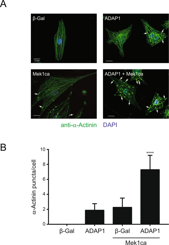 ADAP1 relocalizes cytoskeletal α-Actinin. ( A ) Representative confocal images (Olympus FluoView FV1000 microscope) of α-Actinin-immunostained rat neonatal ventricular cardiomyocytes (RNVC) infected with a β-Gal- (negative control), ADAP1-, or Mek1ca-overexpressing adenovirus, individually or in combination as indicated, and cultured for 72 h post-infection. Arrows point to α-Actinin dense puncta. The scale bar represents 12 µm. ( B ) Number of α-Actinin puncta per cell measured with the Operetta High-Content Imaging System (Perkin Elmer) using the same experimental conditions as in A ( n = 4 independent experiments). **** P