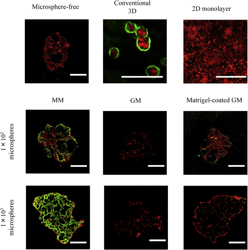 Confocal microscopic pictures of laminin expression of EpH4 cells 7 days after incubation of EpH4 cells with MM, GM, and matrigel-coated GM or without microspheres. EpH4 cells were cultured by the conventional 3D and 2D monolayer methods. The number of EpH4 cells added initially was 1 × 10 4 /well while that of microspheres was 1 × 10 2 or 1 × 10 3 /well. Scale bar. 100 μm.