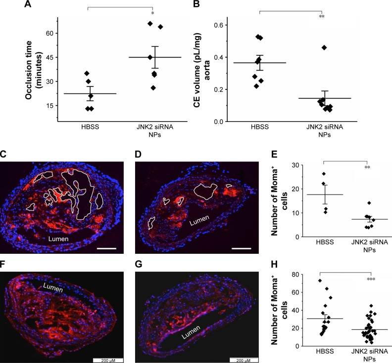 p5RHH-JNK2 siRNA NPs reduce thrombotic risk, restore endothelial integrity, and decrease necrotic plaque area and macrophages. Notes: ( A ) Shorter occlusion times for untreated ApoE −/− mice indicate more aggressive clotting (ie, heightened thrombotic risk) compared to mice treated with p5RHH-JNK2 siRNA NPs (n=6), which manifest prolonged occlusion times compared to HBSS control (n=5, P =0.02). ( B ) 19 F MRS demonstrates significantly less perfluorocarbon (CE volume) NP accumulation in ApoE −/− mice after p5RHH-JNK2 siRNA NP treatment (n=8) compared to those treated with HBSS (n=7) ( P =0.003), confirming restoration of endothelial barrier integrity that now prohibits passive permeation of perfluorocarbon NPs. ( C and D ) Representative aorta sections demonstrate that necrotic plaque area is reduced in p5RHH-JNK2 siRNA NP-treated animals ( D ) (n=8) compared to those treated with HBSS ( C ) (n=4, bar 100 μm). ( E ) Necrotic plaque areas from mice treated with p5RHH-JNK2 siRNA NPs are reduced compared to mice receiving HBSS ( P =0.004). ( F and G ) Representative immunofluorescence stains demonstrate significantly fewer Moma-positive cells in atherosclerotic plaque from ApoE −/− mice treated with p5RHH-JNK2 siRNA NPs ( G ) (n=36) compared to HBSS control mice ( F ) (n=17, P