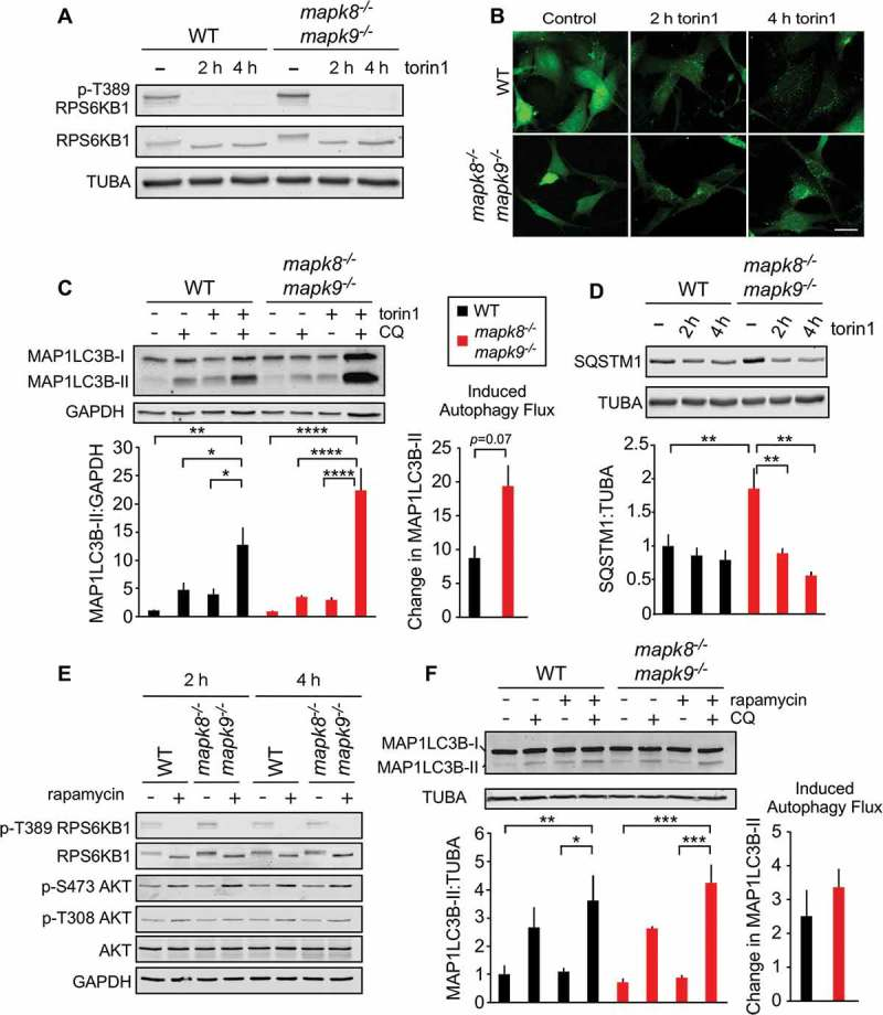 Autophagy caused by MTOR inhibition does not require MAPK8/9 in immortalized MEFs. (a) The amount of RPS6KB1, p-Thr389 RPS6KB1, and TUBA (tubulin alpha) in WT and mapk8 −/- mapk9 −/- immortalized MEFs after incubation without or with 250 nM torin 1 (2 or 4 h) was examined by immunoblot analysis. (b) WT and mapk8 −/- mapk9 −/- immortalized MEFs were transduced with a lentivirus vector that expresses GFP-LC3B. Puncta formation following incubation of the cells with 250 nM torin 1 (2 and 4 h) was examined by fluorescence microscopy. Scale bar: 30 µm. (c) LC3B and GAPDH (glyceraldehyde-3-phosphate dehydrogenase) expression by WT and mapk8 −/- mapk9 −/- immortalized MEFs after incubation (2 h) without or with 250 nM torin 1 in the absence or presence of 25 µM chloroquine (CQ) was examined by immunoblot analysis. The LC3B-II:GAPDH ratios were normalized to the mean of WT control condition (first lane). The 'Change in MAP1LC3B-II' was calculated by subtracting MAP1LC3B-II:GAPDH (media+ CQ condition) from MAP1LC3B-II:GAPDH (torin 1+ CQ condition). The data presented represent the mean ± SEM; n = 3 independent experiments; *, p