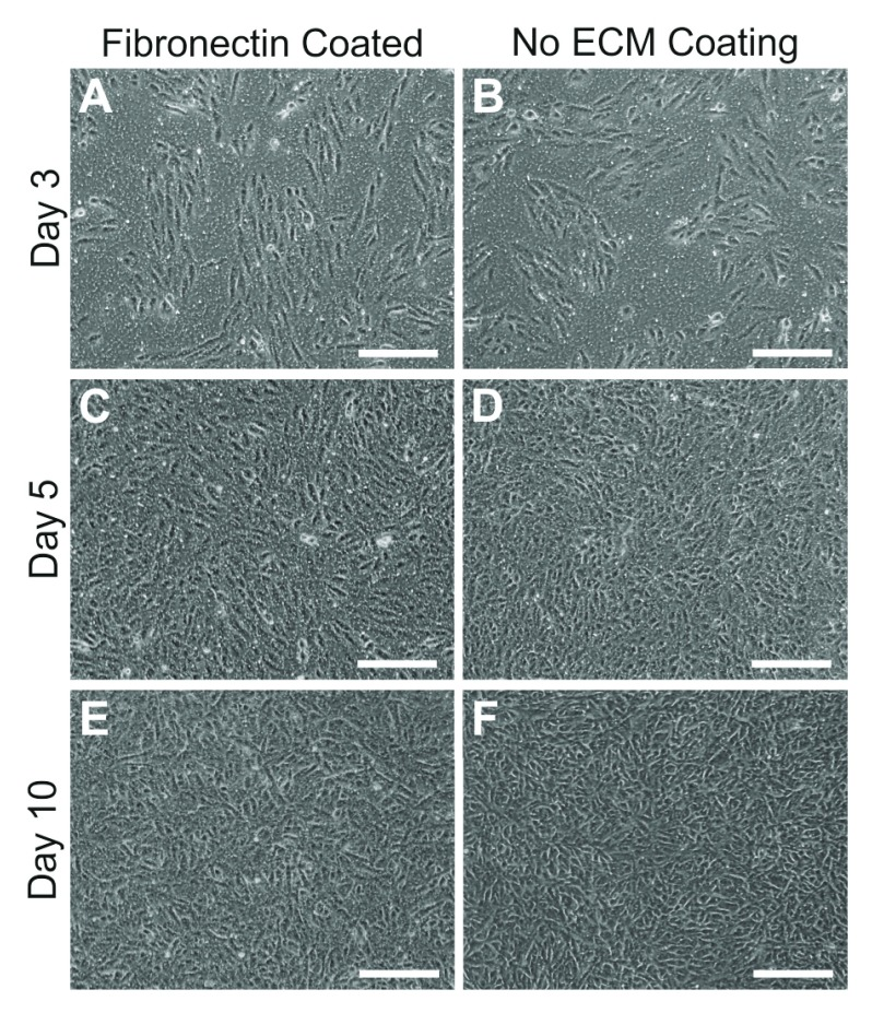 Attachment and growth of ARPE-19 cells with or without an underlying fibronectin matrix. We tested effects of an extracellular matrix (ECM) such as fibronectin on the ability of cells to form a monolayer on transwell membranes. Inserts coated with fibronectin [ A , C , E ] or those without any coating [ B , D , F ] were imaged over several days after seeding. No differences were observed in cell attachment or growth. Contact inhibition proceeded cell differentiation after approximately 10 days in culture. Scale bars correspond to 200μm.