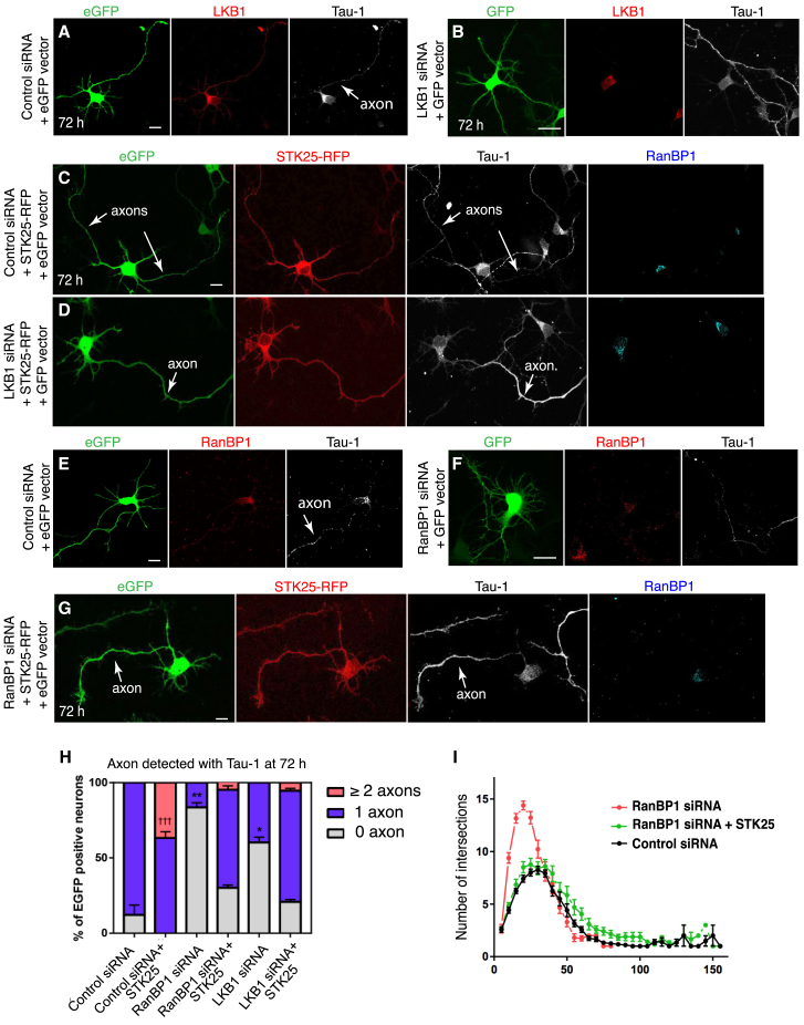 LKB1 Is the Main Cargo Regulated by the Ran/RanBP1 Pathway during Axonogenesis (A and B) Rat cortical neuron transfected with control <t>siRNAs</t> and the eGFP -reporter (A) and siRNAs targeting LKB1 and the eGFP -reporter plasmid (B). (C) 72 hr cortical neuron overexpressing STK25-red fluorescent protein (RFP) and scrambled <t>siRNA</t> together with an eGFP -reporter plasmid. (D) 72 hr cortical neuron overexpressing STK25-RFP and ranBP1 -siRNA together with the eGFP -reporter plasmid. (E and F) 72 hr cortical neuron transfected with scrambled siRNA and the eGFP -reporter (E) and 72 hr cortical neuron transfected with siRNAs targeting ranBP1 and the eGFP -reporter plasmid (F). (G) 72 hr cortical neuron transfected with siRNAs ranBP1 , STK25-RFP , and an eGFP -reporter plasmid. (H) The mean percentage of 72 hr neurons with 0, 1, or ≥2 axons over three independent replicates were determined for each condition. The absence of axon in ranBP1 and LKB1 siRNA neurons is rescued by expressing STK25-RFP . At least 24 neurons were scored for the number of axons for each condition. (I) Sholl analysis of siRNA control (n = 15), ranBP1 -siRNAs neurons (n = 18), and ranBP1 -siRNAs neurons rescued by overexpressing STK25-RFP (n = 21) was performed 72 hr after transfection. A statistically significant decrease in intersection numbers was observed for the rescue experiment between 10 and 25 μm from the cell body (at 10, 15, 20, and 25 μm ∗ p